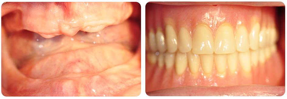 dentures4