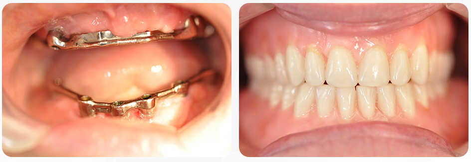 Implant-supported-denture-2